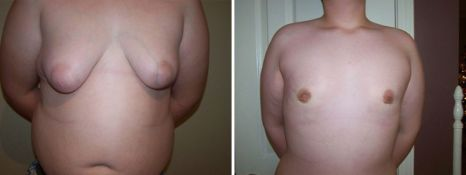 BEFORE and AFTER PHOTOS: FTM SURGERY - Male, frontal view, patient 2