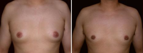 BEFORE and AFTER PHOTOS: FTM SURGERY - Male, frontal view, patient 3