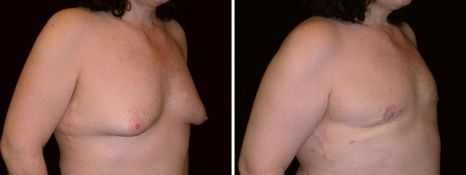 BEFORE and AFTER PHOTOS: FTM SURGERY - Male, right side oblique view, patient 4