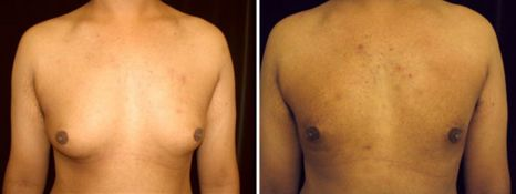 BEFORE and AFTER PHOTOS: FTM SURGERY - Male, frontal view, patient 5