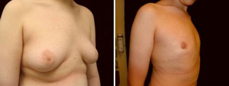 BEFORE and AFTER PHOTOS: FTM SURGERY - Male, right side oblique view, patient 6